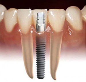 Dental Implant Photo